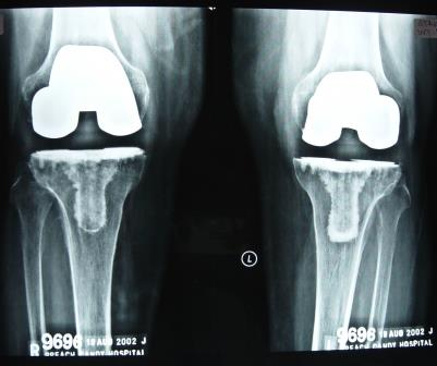 Photo of Healthcare Industry supports Govt's Move to Cap Knee Implant Prices but is skeptical about implementation
