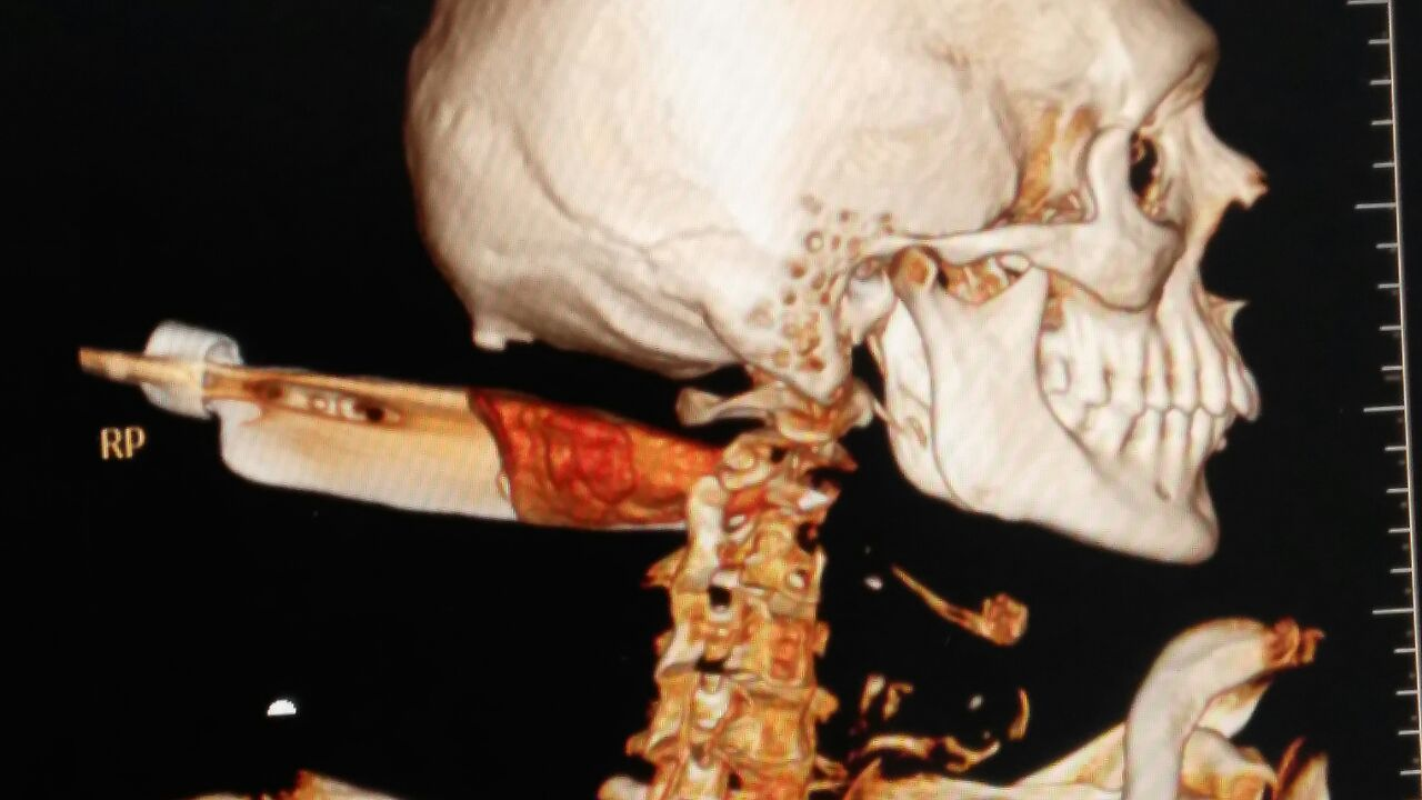 Photo of Unique Case: Knife Splits Spinal Cord, Patient Survives after Surgery