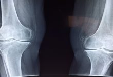 Photo of Urban Indians are Suffering from Brittle Bones: Study