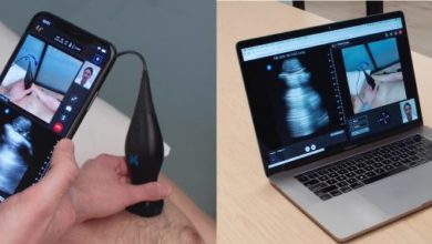 Photo of PyraMed launches telemedicine platform for joint video consultation