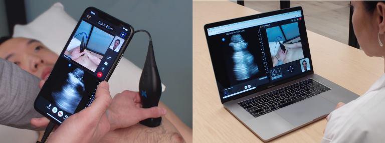 ultrasound-based telemedicine