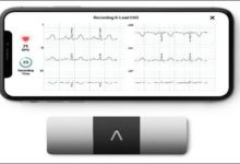 Photo of AliveCor Launches World's Only Six-lead, Personal ECG Device to India