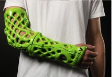 Photo of ActivArmor launches 3D-printed orthopaedic casts