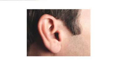 Photo of One in four people projected to have hearing problems by 2050: WHO
