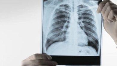 Photo of Metropolis Healthcare launches NEXTGEN TB
