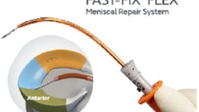 Photo of Smith+Nephew launches FAST-FIX FLEX Meniscal Repair System