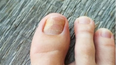 Photo of Lupin launches onychomycosis topical solution in US market