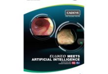 Fujifilm launches new CAD EYE function for real time colon polyp detection